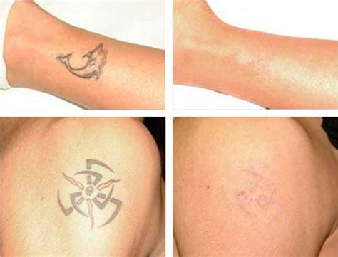 tattoo removal results removal