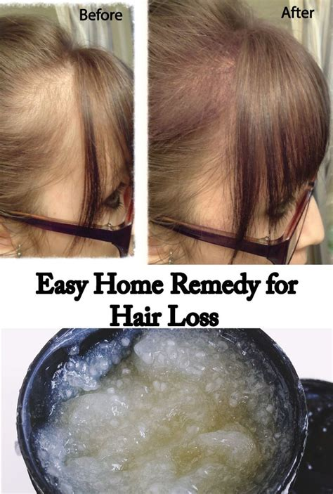 hair loss  affecting    people  year
