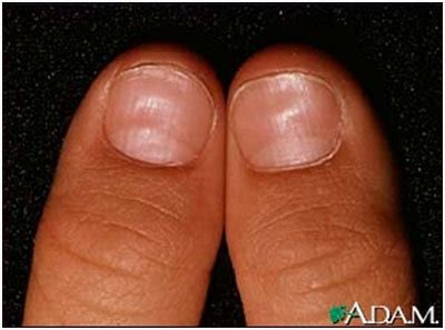 flat nail beds flat nail beds 28 images wide nail beds best flat