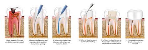 mutterbänder ziehen ab wann wurzelbehandlung und zahnschmerzen ablauf dauer und kosten