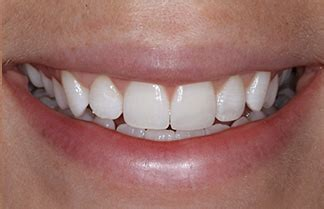 tooth whitening gloucester cosmetic dentist teeth