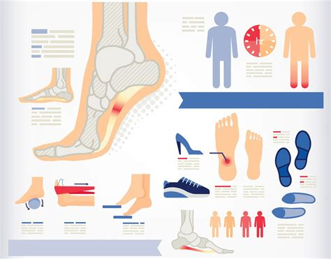 14 ways how to treat plantar fasciitis