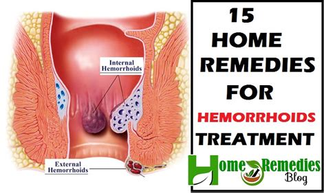 piles 15 home remedies for hemorrhoids treatment home