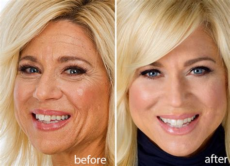 what did theresa caputo want to be before getting discovered theresa caputo skincare product from shark tank patienthelp