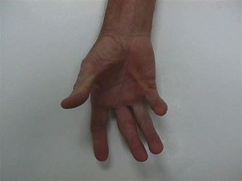 dupuytren s palmar fasciectomy thumb pinky cord