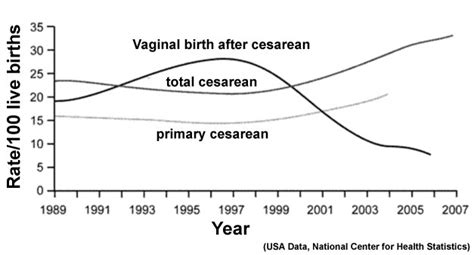 c section birth vs natural birth caesarean delivery embryology