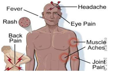 High fever 3 7 days headache bone amp joint pain muscle pain eye pain