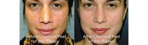 Review Renewance Anti Aging Chemical Peel by Chemical Peels Dermaplaning At Anti Aging