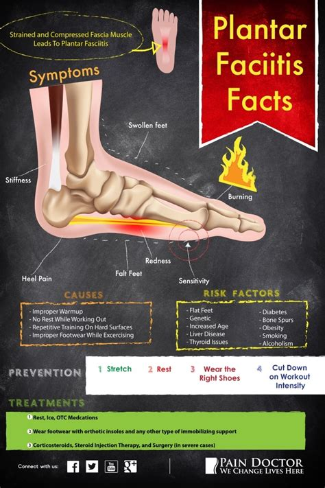 what is planters foot what is plantar fasciitis doctor