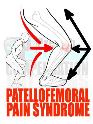 pattern is movement bandc 241 best images about prehab exercises on pinterest knee