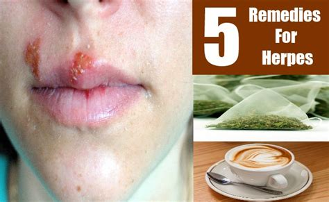 5 remedies for herpes treatments cure for