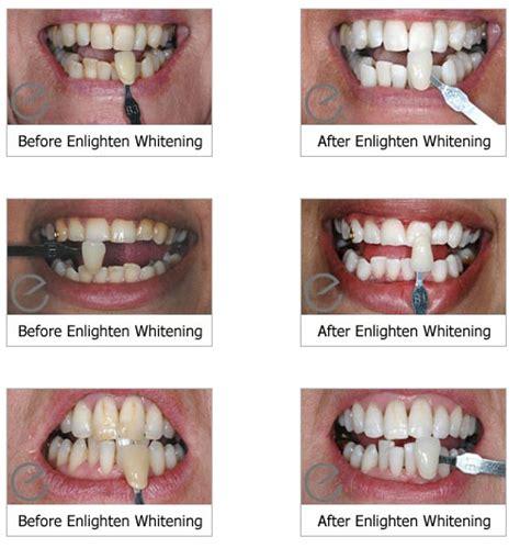 teeth whitening weston super mare enlighten tooth whitening