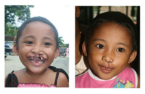s new smile a baby with cleft lip and palate books childrens surgeries ruel foundation
