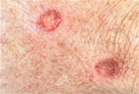what are bed sores treatment for diabetic sores on legs what are the autos post