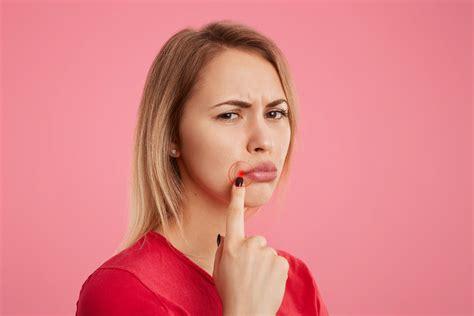 herpes bocca interno herpes labiale perch 233 viene e come curarlo farmae magazine