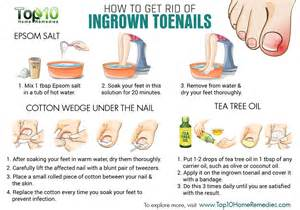 remedies ingrown toenails nature health family