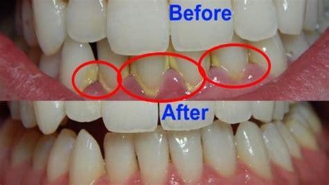 Pembersihan Karang Gigi Di Dental karang gigi ancaman yang disepelekan dental id