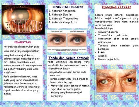 Obat Tradisional Katarak Pada Mata penyakit katarak katarak design bild