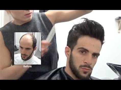 hairline restoration for men hair replacement fitting video sam hair loss baldness