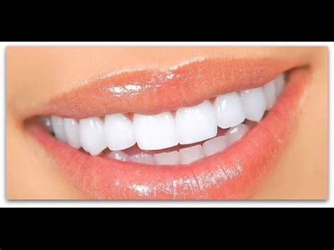 5 Tips For Whiter Teeth by Top 5 Tips For Brighter Whiter Teeth Effortlessly