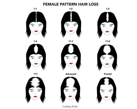 female pattern hair loss scale female hair loss hair treatment in seattle portland