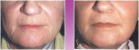 dermabrasion birmingham alabama skin resurfacing
