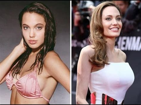 breast implants surgery all about celebrity breast top 10 celebrities with the most expensive breast implants