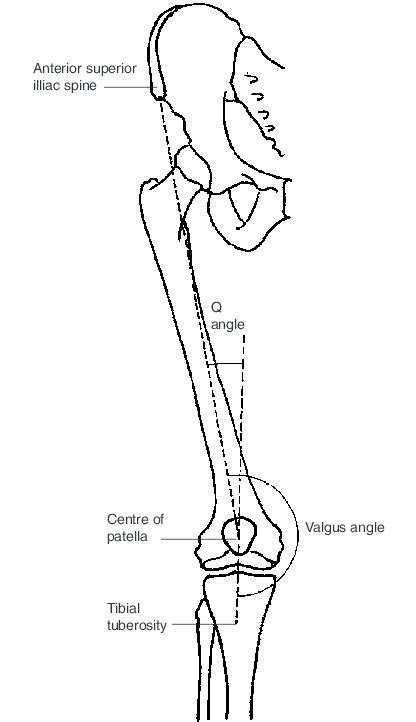 Q angle and valgus angle of the right leg. | Download ... Q Angle Genu Valgum