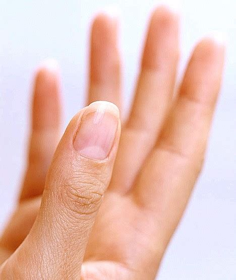 healthy nail beds what s in a nail how fingernails give clues to your