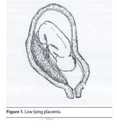 plazenta praevia totalis wann kaiserschnitt differential diagnosis
