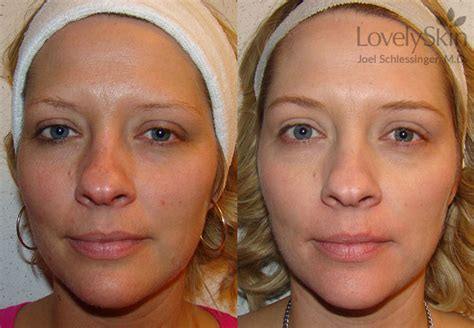 e one ipl session before and after on man and woman face omaha cosmetic surgery ipl treatment skin specialists pc
