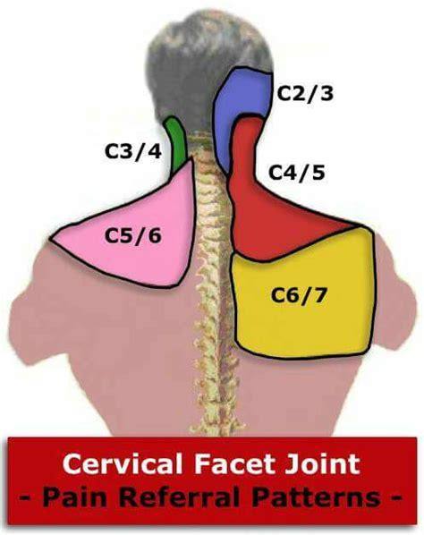joint pattern en español cervical facet joint pain referral patterns vis 237 tenos en