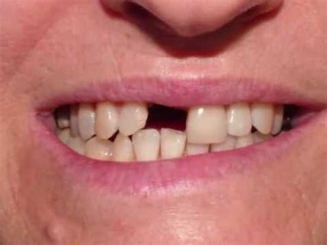 4 missing front teeth implants how to fix the missing front tooth dental implant crown