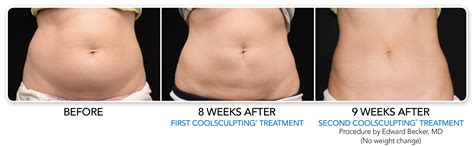 coolsculpting before and after coolsculpting before