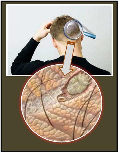 mengatasi kulit kepala kering berjamur gatal