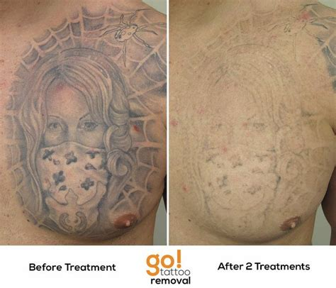 large tattoo removal amazing progress on this chest after 2 laser