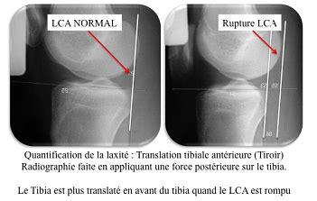Tiroir Du Genou by Genou Lyon Ortho Clinic