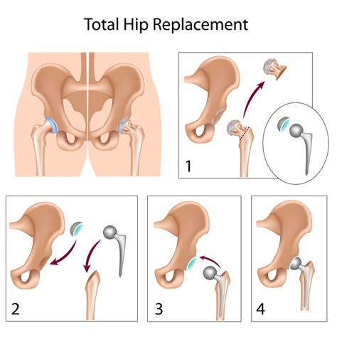 hip replacement total hip replacement explained blue ridge orthopaedic spine center warrenton