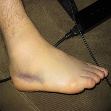 sprained ankle correct treatment for sprained ankle how to treat sprained ankle home remedies
