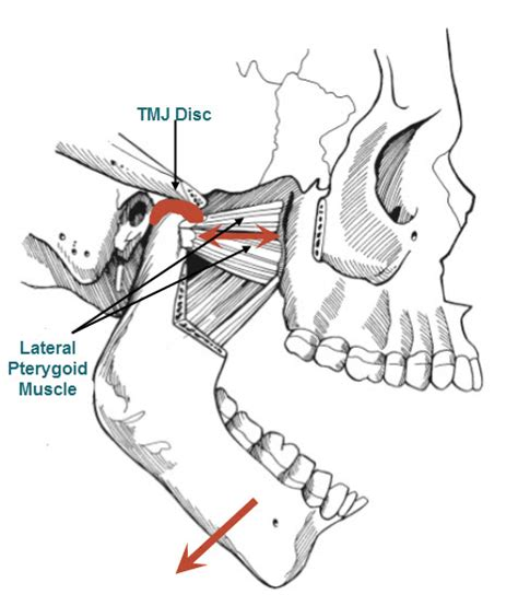 tmj diagram tmj anatomy diagram tmj get free image about wiring diagram