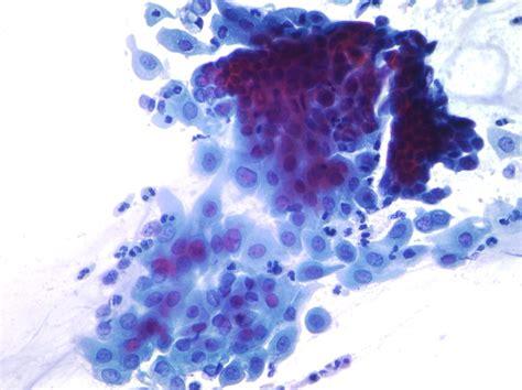 pap test metaplasia diagnostic of cervical pathology pap smear pap test