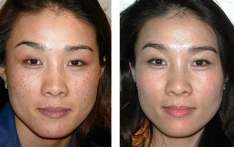 before and after pictures of pigmentation on skin 10 ways to get rid of hyperpigmentation on face fast