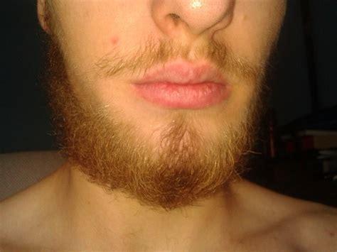 shiny red hair under chin nate s beard journey beard board