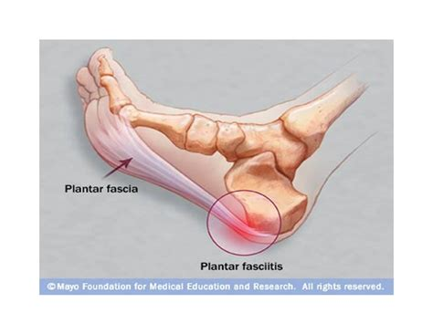 Planters Faceitis by How I M Treating Plantar Fasciitis