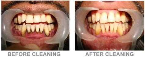 dental cleaning cost dental cleaning before and after www pixshark images galleries with a bite