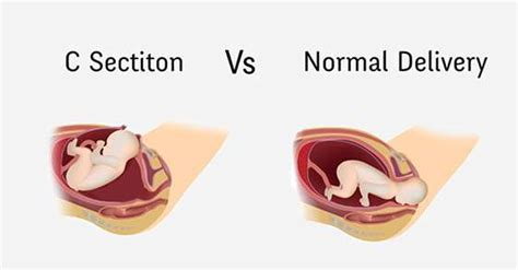 are c sections dangerous why you should never opt for a c section and the dangers
