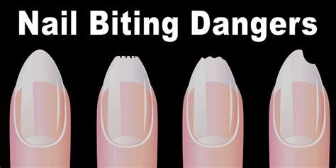 how do you a to stop biting nail biting why it happens and what to do about it what happens when you are biting