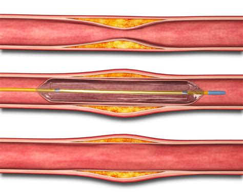 coronary angioplasty with or without stent implantation angioplasty without vascular stenting