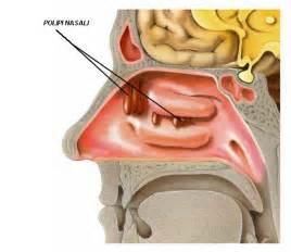 tumore orecchio interno sintomi polipi nasali e poliposi nasale