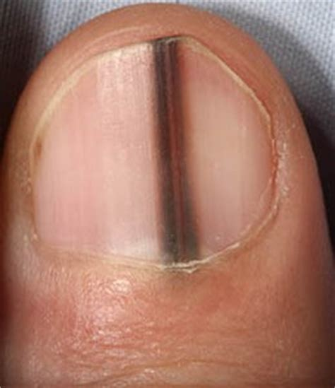 dark line on fingernail are black lines in fingernails melanoma safe symptoms